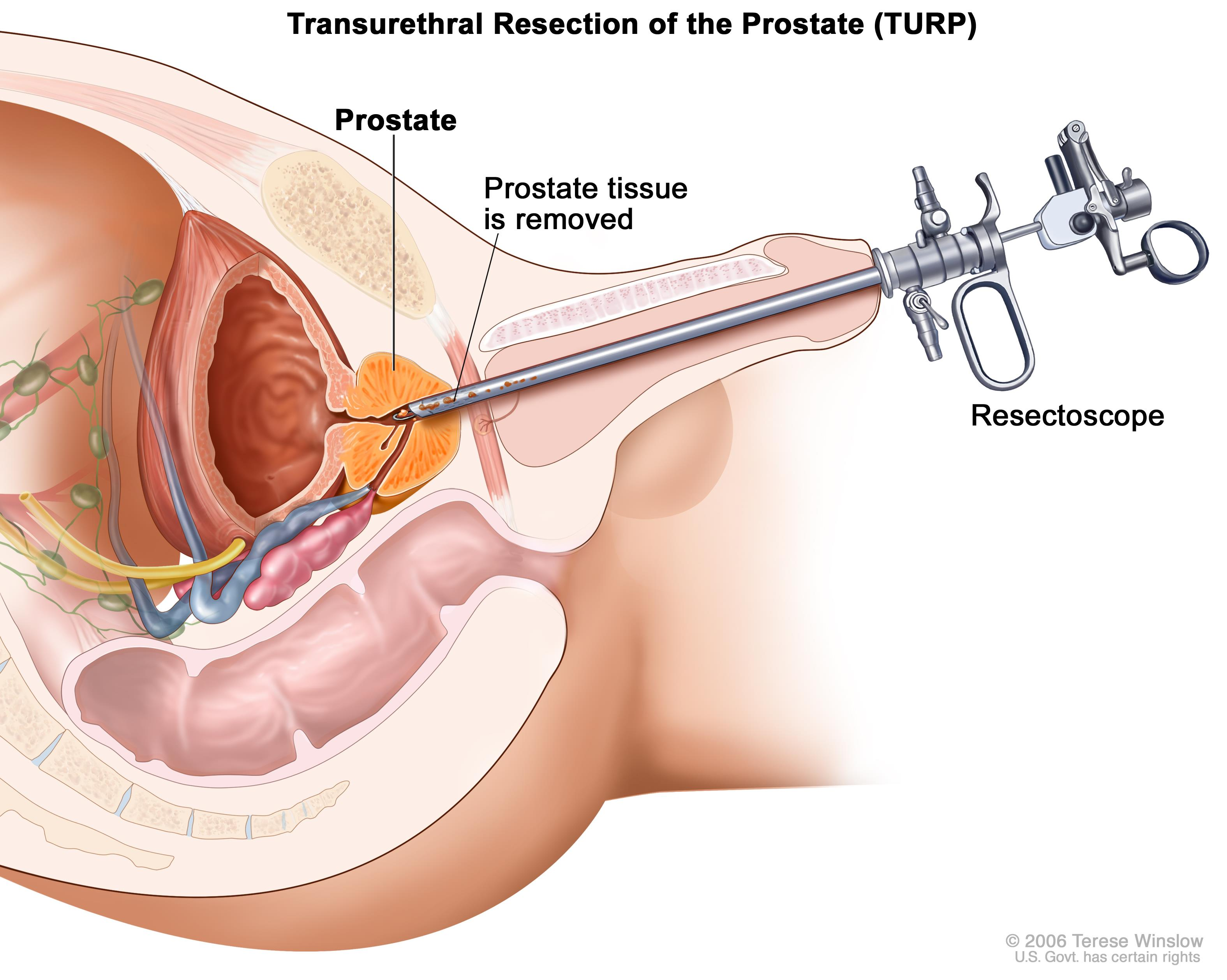 prostate test